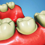 Mějte bílé a zdravé zuby!
